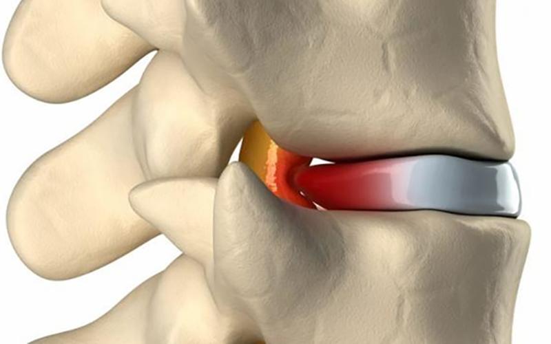 Hérnia Discal - Tratamento | Clínica do Corpo